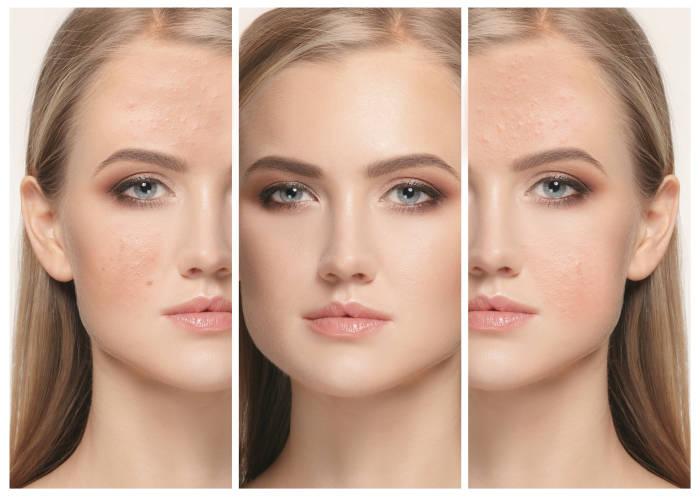 Manfaat Buah Matoa untuk Kecantikan Kulit