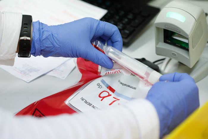 Sampel virus corona yang menjalani tes di laboratorium