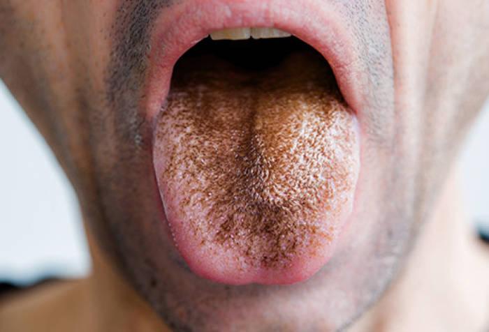 kondisi lidah