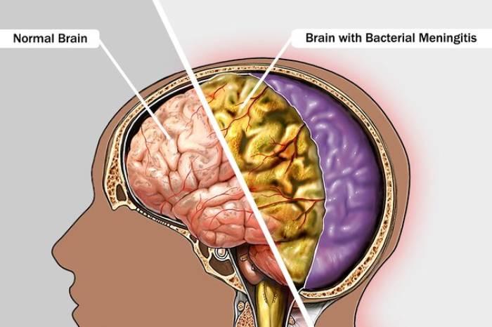 Ilustrasi kerusakan otak