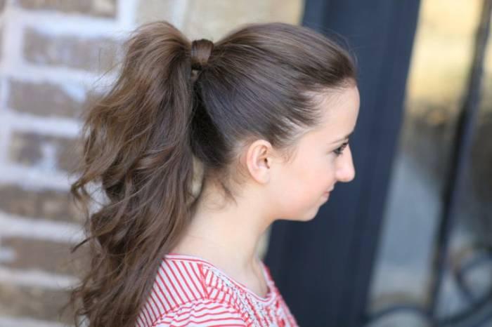 Alopecia Traksi