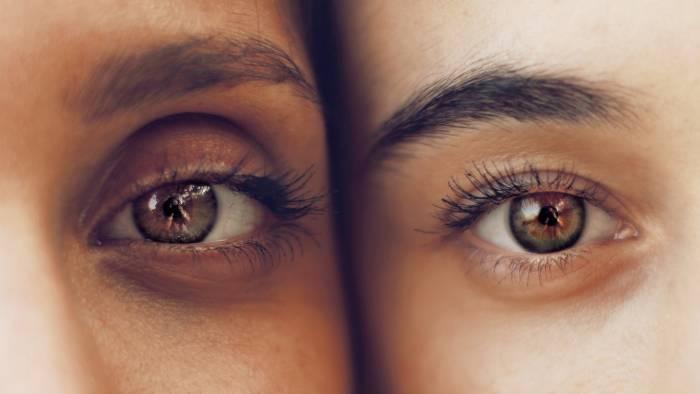 cara menghilangkan lingkaran hitam di sekitar mata