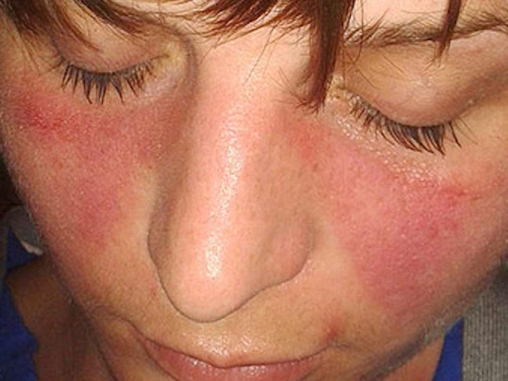 Ilustrasi tanda penyakit lupus