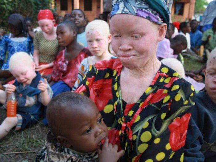 Kisah Kelam Orang-orang Albino yang Diburu dan Dibunuh di Tanzania