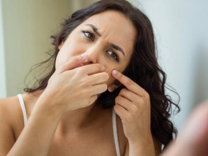 Jerawat Bikin Wajah Gatal Ketahui yuk Penyebabnya