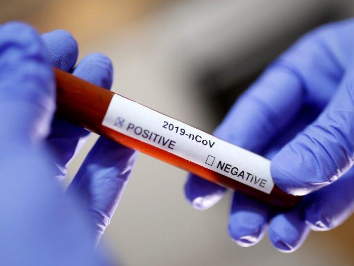 Salah Satu Staf Ratu Elizabeth II Positif Terinfeksi Virus Corona