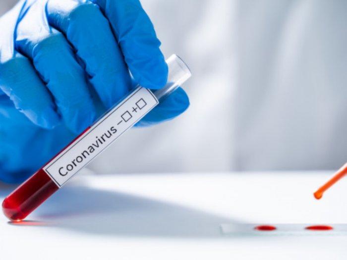Kapan Pandemi Virus Corona Berakhir Ini Ramalan Peneliti Harvard