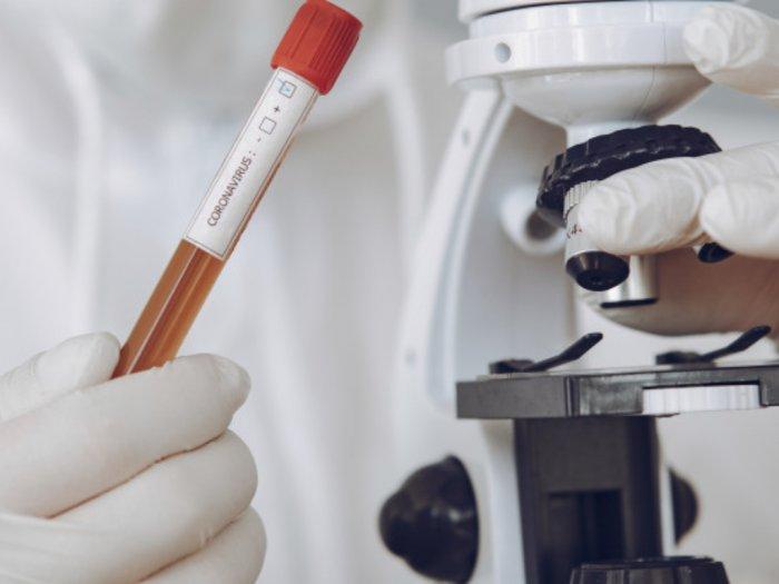 Ternyata Ini Alasan Vaksin Virus Corona Sulit Ditemukan