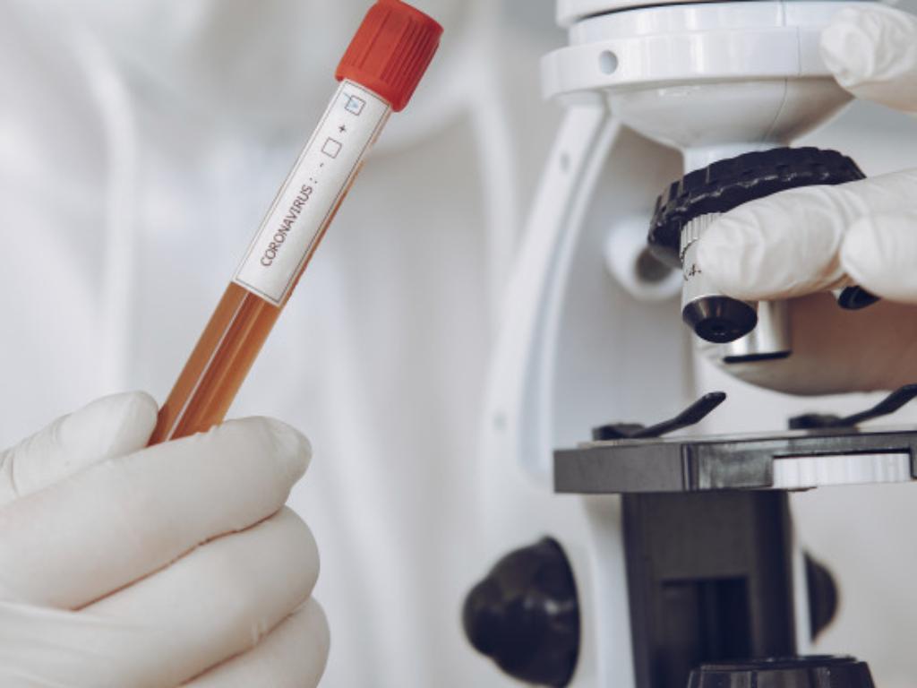 Peneliti Amerika Isu Viral Virus Corona Jilid 2 Bikin Kesal