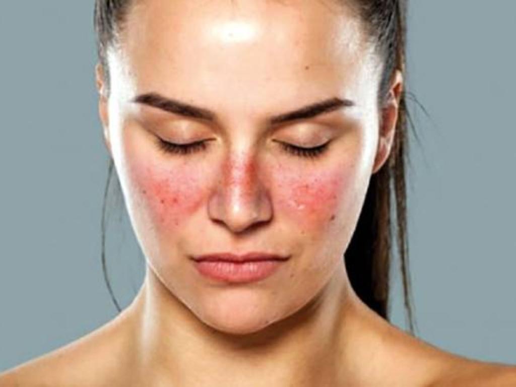 Gejala dan Penyebab Penyakit Lupus Apa Saja