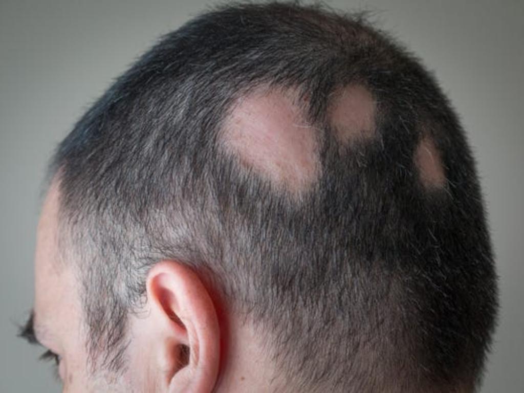 8 Jenis Kerontokan Rambut yang Kamu Harus Tau