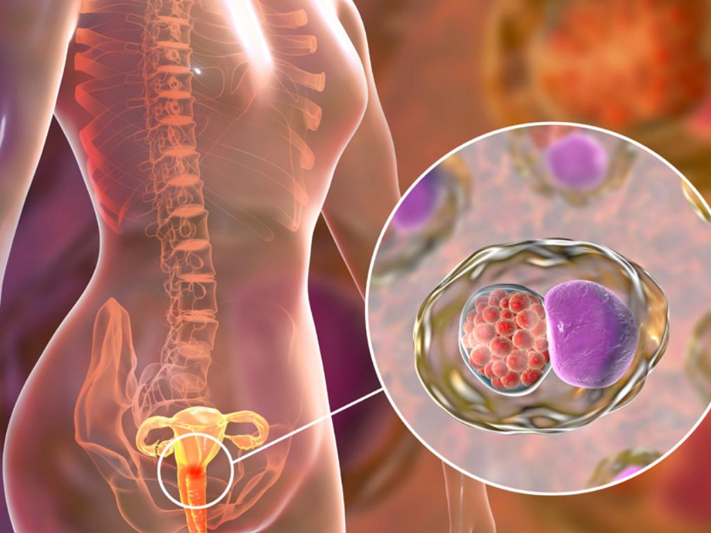 Kanker Serviks Gejala Penyebab dan Cara Mencegahnya