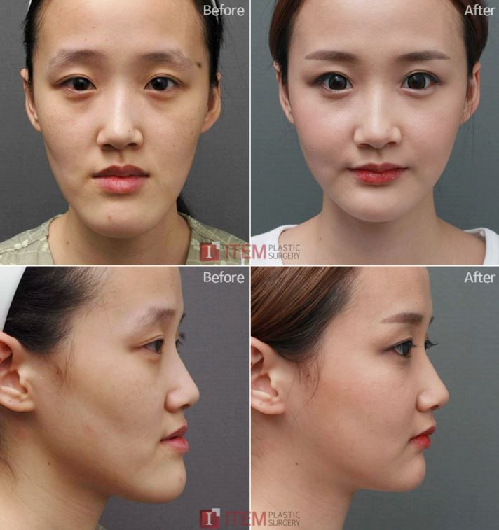 Kwikku, Advance Facial Countouring
