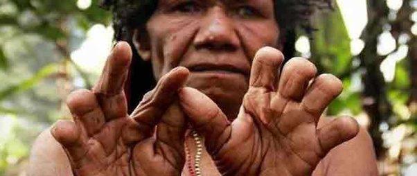 Kwikku, Memotong Jari Tangan