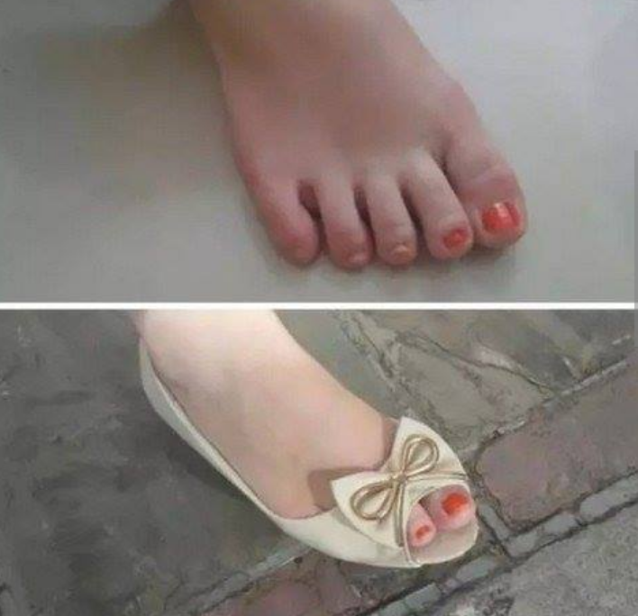 Kwikku, Mungkin karena terburuburu cewek ini cuma sempat mengecat kuku yang kelihatan diflat shoesnya saja
