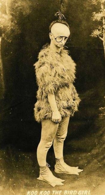 Kwikku, Julukannya adalah gadis burung namanya KooKoo Dari fotonya saja sudah bikin merinding