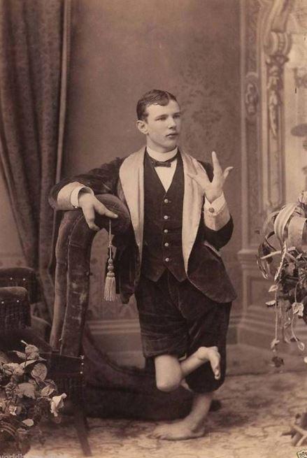 Kwikku, Meskipun ia memiliki kelainan bentuk tubuh namun pria ini masih bisa jadi pemain sirkus