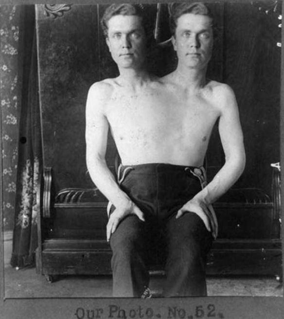 Kwikku, Manusia kembar siam yang aktif jadi pemain sirkus saat itu