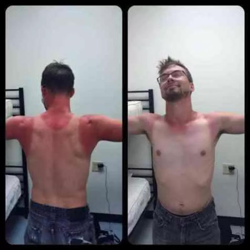 Kwikku, So lain kali jangan lupa pakai sunblock yang benar ya Sialnya ada bekas kaos singlet di badan orang ini