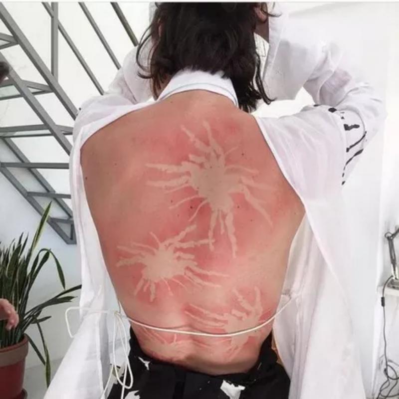 Kwikku, Lucunya punggung orang ini tampak disinggahi beberapa kepiting saat berjemur