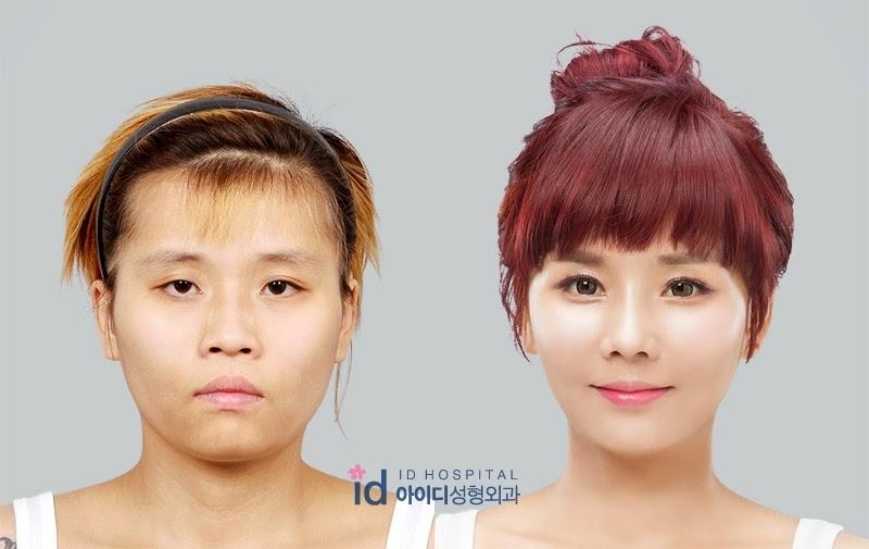 Kwikku, Soyoung Bae
