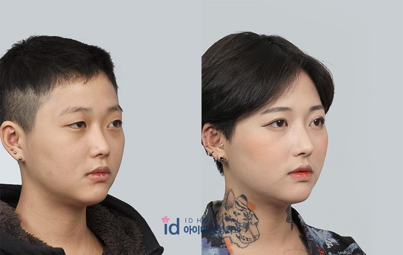 Kwikku, Lina Ahn