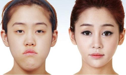 Kwikku, Ye Eun Huh