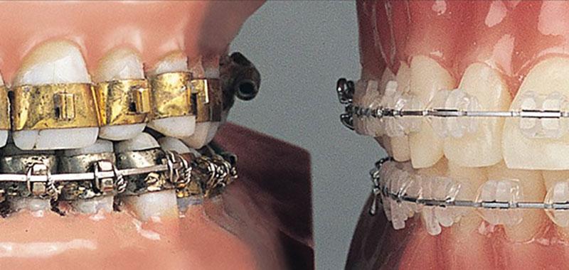 Kwikku, Pengenalan kawat gigi pertama