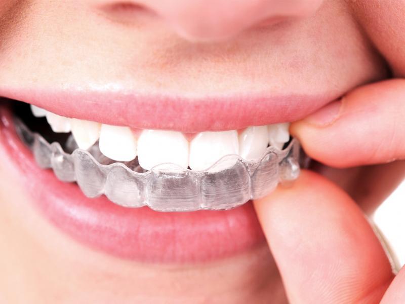 Kwikku, Kawat gigi transparan pertama