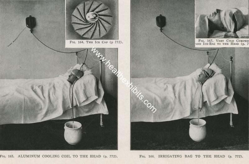 Kwikku, Inilah alat terapi air tempo dulu Airnya akan selalu mengalir dan mendinginkan kepala