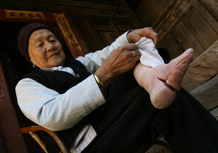 Kwikku,  Lotus feet China