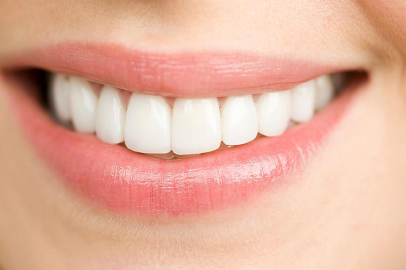 Sebelum Memutuskan Untuk Veneer Gigi Pertimbangkan Hal Ini Dulu Kwikku