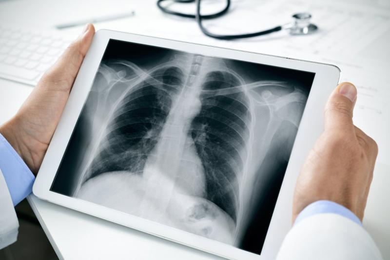Foto Rontgen ini Tunjukkan Benda Aneh Dalam Tubuh Manusia Ada Bohlam di Tulang Rusuk